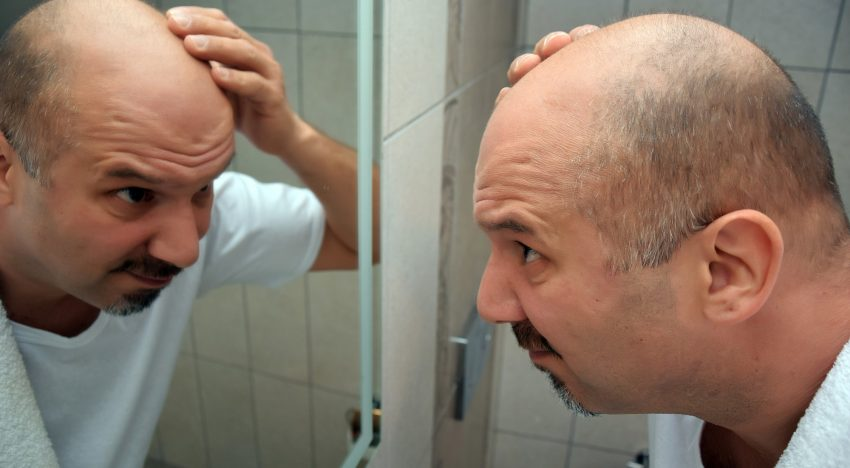 All Your Questions About Scalp Micropigmentation (SMP) Answered